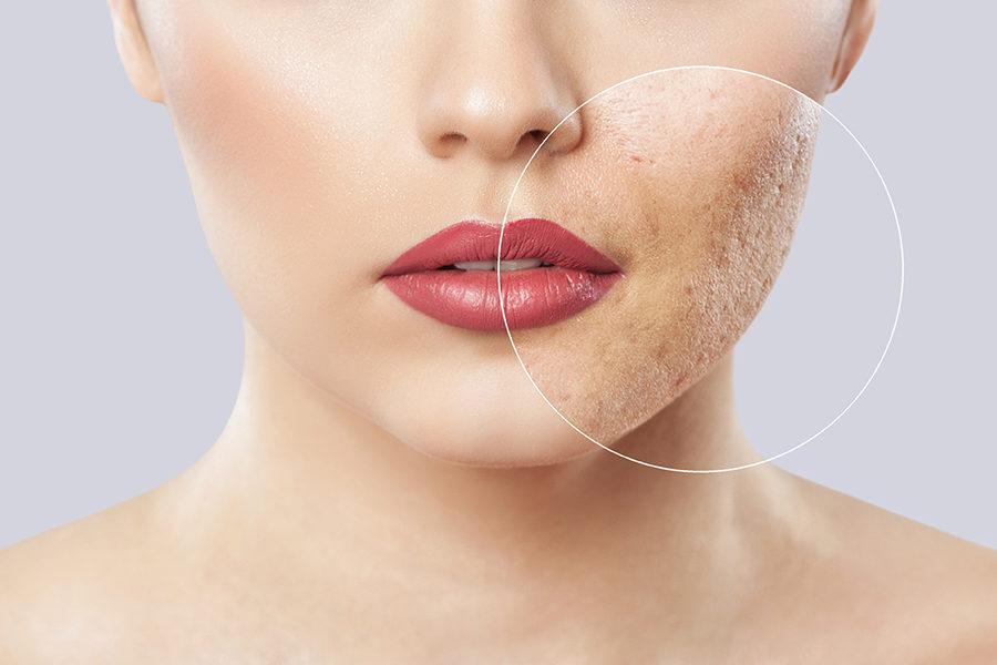 Prevén la grasa de tu cara con una dieta antiacné