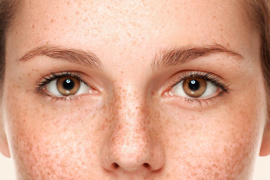 Prevención y atenuación de manchas faciales